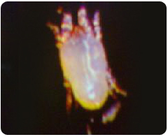 塵螨-東保除蟲.高雄專業除蟲‧白蟻防治(防除白蟻)、消滅白蟻、家白蟻剋星、Sentricon、白蟻餌劑、白蟻防治藥劑…等白蟻相關問題諮詢、探討與分享。白蟻防治專線:07-725-3691